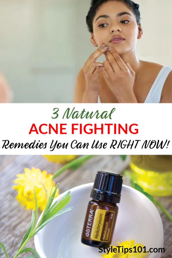 Acne Fighting Remedies